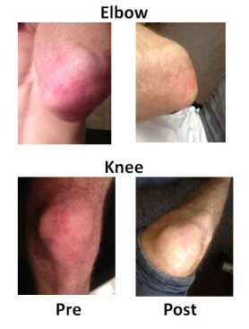 Figure 2 elbow and knee cropped