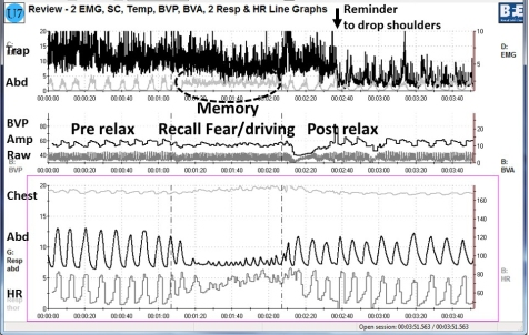 Fig 3 biofeedback relax memory relax